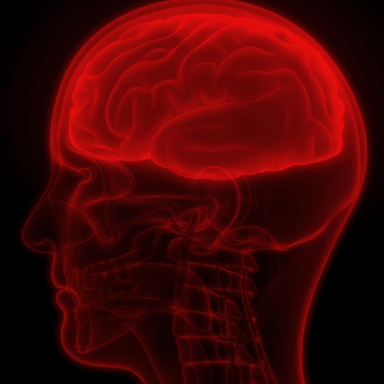 מחקר: קורונה מגבירה סיכוי לשבץ