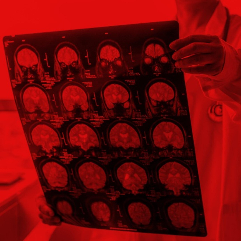 אחד מכל שלושה מחלימי קורונה סובל מתסמינים נוירולוגיים