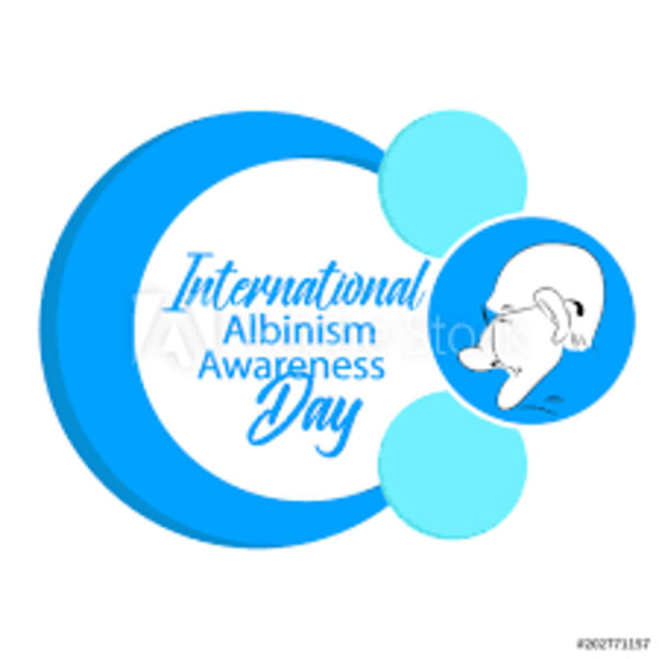 Albinism Society of South Africa reflects on #AlbinismAwarenessDay