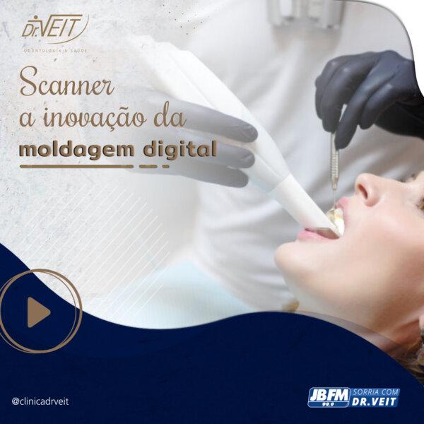 Scanner odontológico: a inovação da moldagem digital