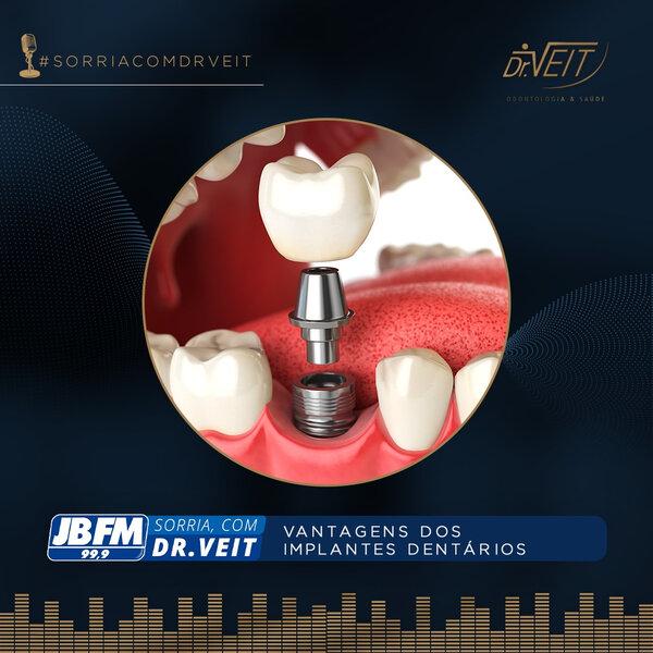 Vantagens dos implantes dentários