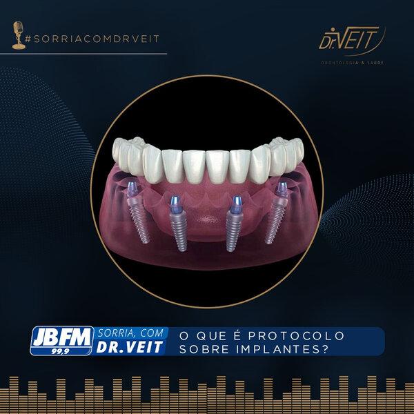 O que é o Protocolo Sobre Implante?