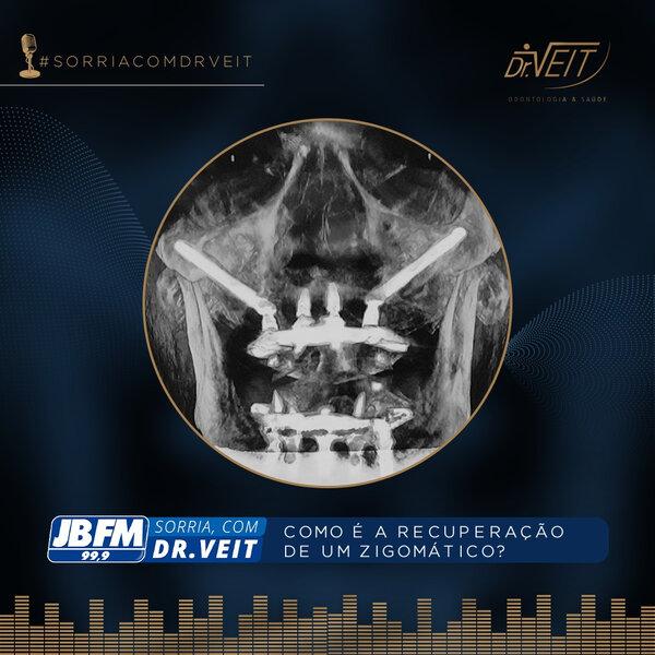Como é a recuperação de um Implante Zigomático?
