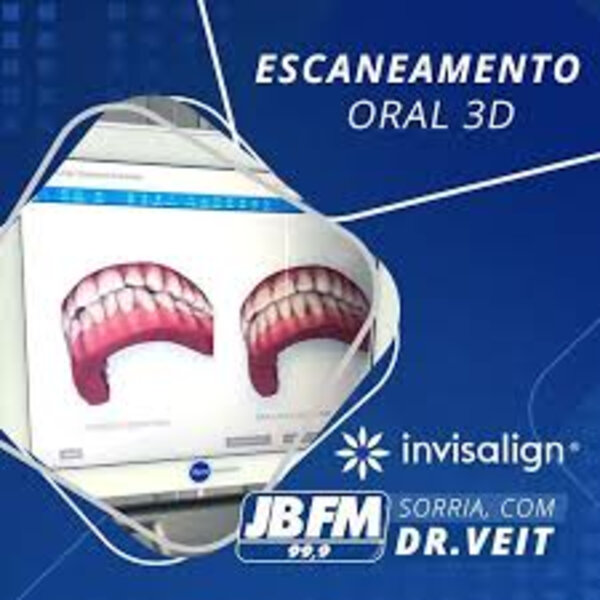 Escaneamento em 3D
