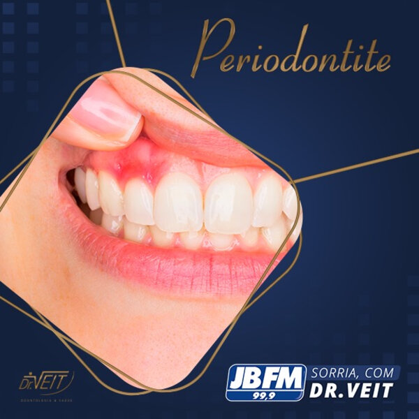Periodontite